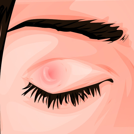 Pimple on the eye. Vector med illustration