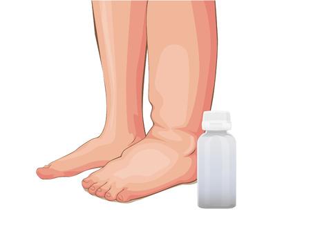 Hinchazón de los pies o problemas renales, ilustración vectorial médica sobre un fondo blanco.