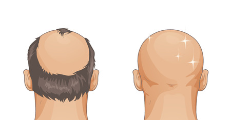 Girl with hair loss problem isolated on white background, cartoon style Illustration