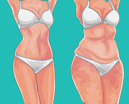 Fat girl. Loss weight on diet or sport. Before picture. Weight loss concept. Vector illustration