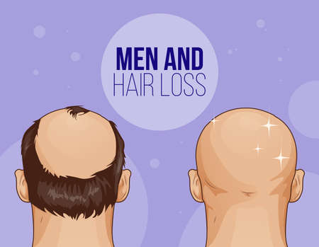 Male hair loss Flat Cartoon Illustration Before after Vetores
