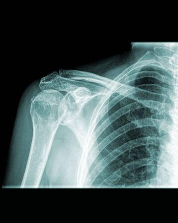shoulder x-ray Stock Photo - 6366829
