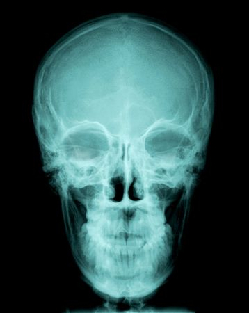 radiografía del cráneo, vista frontal  Foto de archivo - 6399627