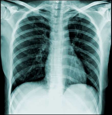 thorax: chest x-ray, front view (thorax)
