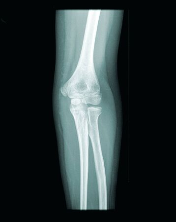 prothesis: x-ray of a human ellbow, open epiphysis, black background Stock Photo
