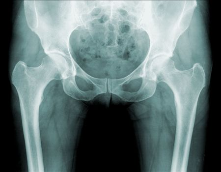 prothesis: x-ray of a human hip , black background
