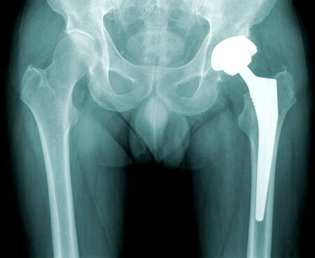 prothesis: x-ray of a human hip with prothesis, black background