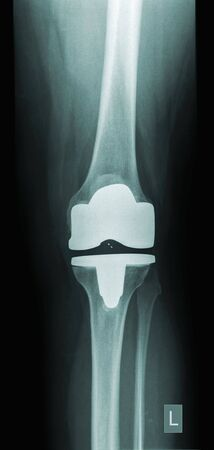 prothesis: x-ray of a human knee with prothesis