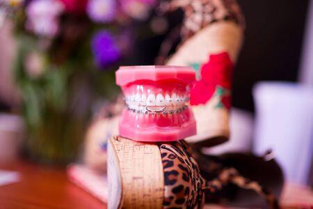 training jaw clamps the engagement ring. Hooligan wedding. Standard-Bild - 129351909