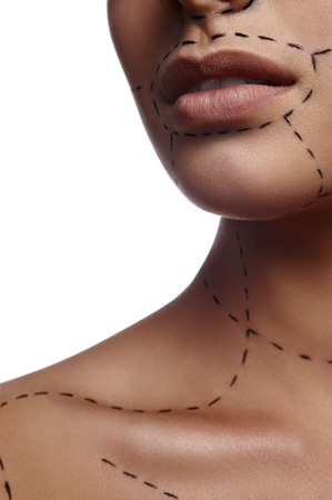 correction lines: Correction Lines on Skin for Plastic Surgery. Beauty and Healthcare