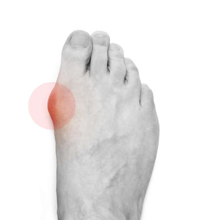 Varus valgus and Hallux valgus, bunion on white background. With clipping path Banco de Imagens