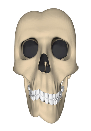Deformed human skull in cartoon style. 3D. Vector illustration.