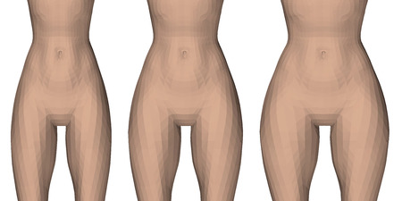 Vector illustration with three types of female waist and hips. From slender to fluffy thighs. Sequence of hips thickening. 3D.