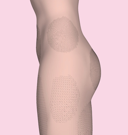 The body of the girl on the side. Athletic waist and ass girls. On the body of the girl identified problem areas of fat and cilulite. 3D. Vector illustration.