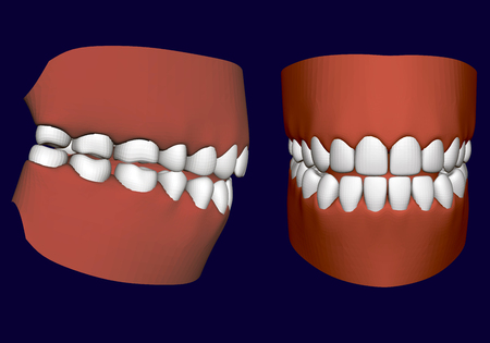 Human jaw with teeth. Side and front view. 3D. Isolated jaw on a white background. Healthy human teeth. Prosthetic teeth. Vector illustration. Stock Illustratie