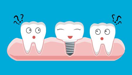 dentin: Human teeth and Dental implant. Stock vector illustration.