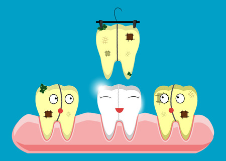 Set of teeth cleaning and whitening concepts. Scaler, laser, mechanical, paint. Cartoon vector dental illustration. Vectores