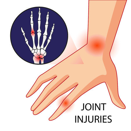 Illustration vector of knee bone and joint pain