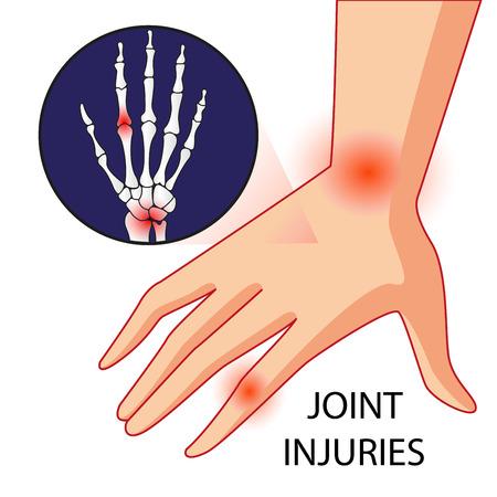 Vector de la ilustración del hueso de la rodilla y dolor en las articulaciones