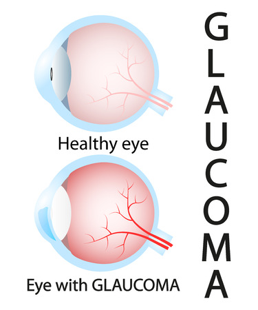 nerve damage: Glaucoma and healthy eye detailed structure.
