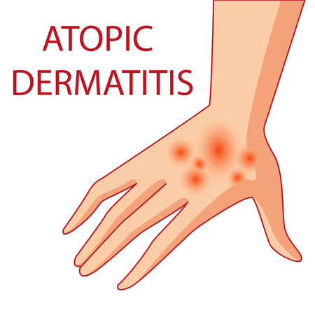 Illustration of atopic dermatitis. allergies. dermatology inflammation. Ilustração