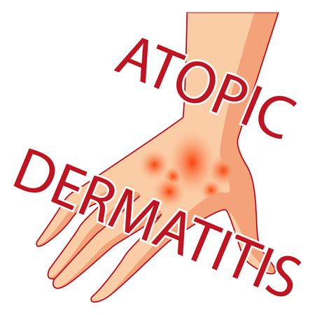 reddening: Artistic design of an illustration of atopic dermatitis. allergies dermatology inflammation.