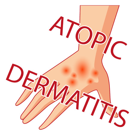 Artistic design of an illustration of atopic dermatitis. allergies dermatology inflammation.