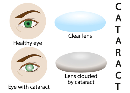Artistic design of an illustration of a healthy eye, glaucoma, cataract.