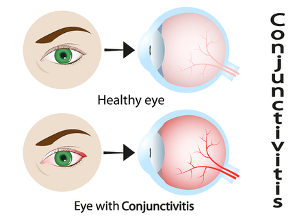 Conjunctivitis. Red Eye. Human Eyeball With Conjunctivitis. Vector Illustration