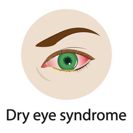 Dry eye syndrome. Vector illustration. Ilustrace