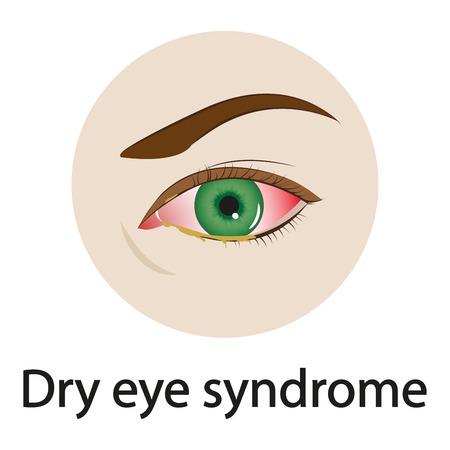 Dry eye syndrome. Vector illustration. Illustration