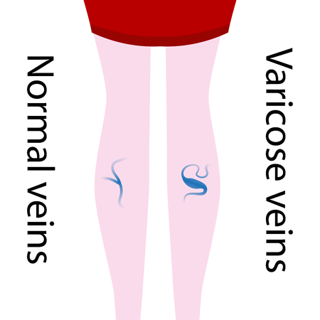 Vector varicose vein and normal vein. Slender and beautiful female legs. Varicose vein.