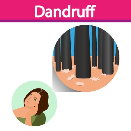 mess: Dandruff vector , closeup on skin