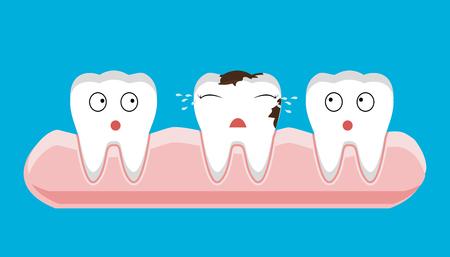 illustrazione del decadimento vista sezione sezione dente con caries problema dentale salute - vettore