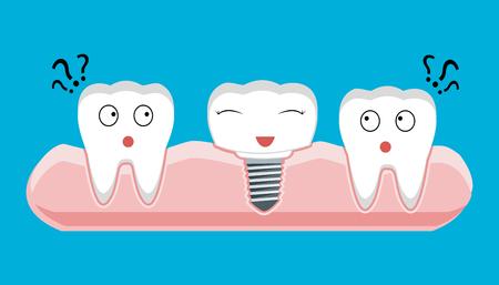 orthodontist: Human teeth and Dental implant. Stock vector illustration.