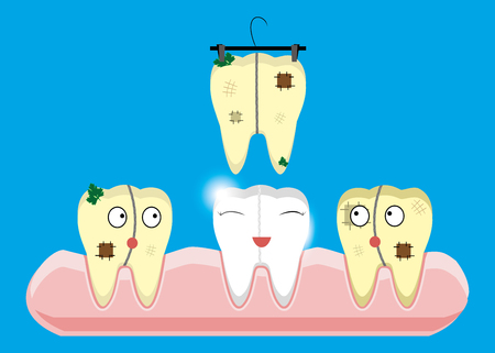 Set of teeth cleaning and whitening concepts. Scaler, laser, mechanical, paint. Cartoon vector dental illustration. Illustration