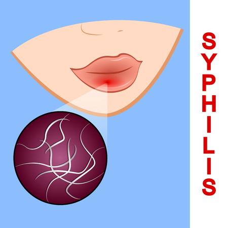 syphilis: Illustration of syphilis. symptoms and causative agent