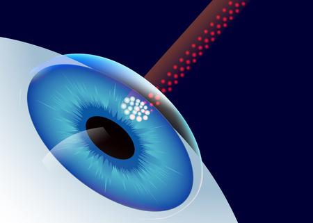 Illustrazione che mostra una procedura di chirurgia dell'occhio del laser