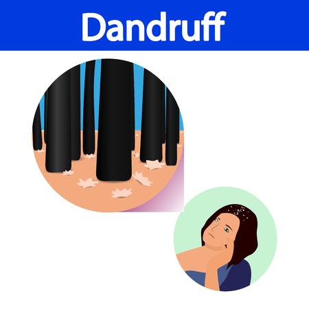 Dandruff vector , closeup on skin