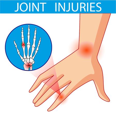bursitis: Joint pain. Cartoon vector illustration.