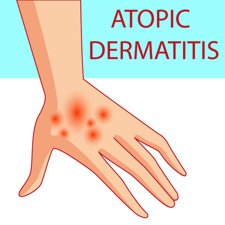 scratchy: atopic dermatis. The person scratches the arm on which is atopic dermatitis. Itching. Colored vector illustration of a skin lesion, itchy skin.