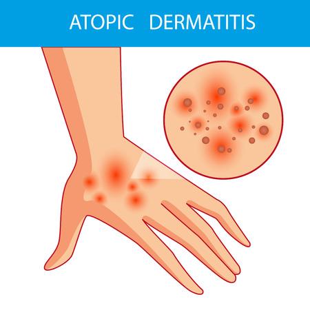 atopische dermatis. De persoon krast de arm waarop atopische dermatitis is. Jeuk. Gekleurde vectorillustratie van een huidlaesie, jeukende huid.