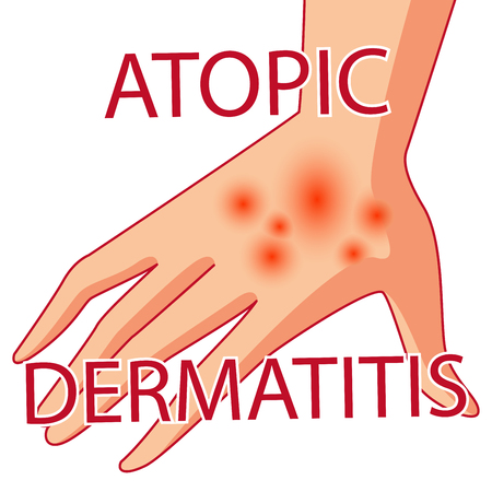 varicela: Atopic dermatitis vector illustration of a skin lesion, itchy skin.