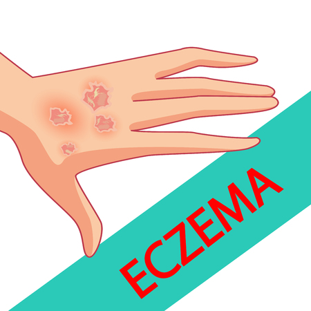 Eczema of the Hands