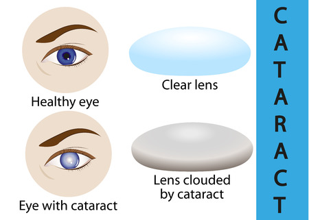 clouding: A cataract is an clouding crystalline lens inside the eye.