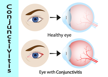 Conjunctivitis. pink eye (with inflammation). External View and Vertical section of the human eyes and eyelids. Schematic diagram. detailed illustration. Illustration