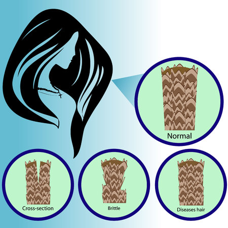 Hair follicle. Cross-section, brittle, loss, diseases hair Illustration