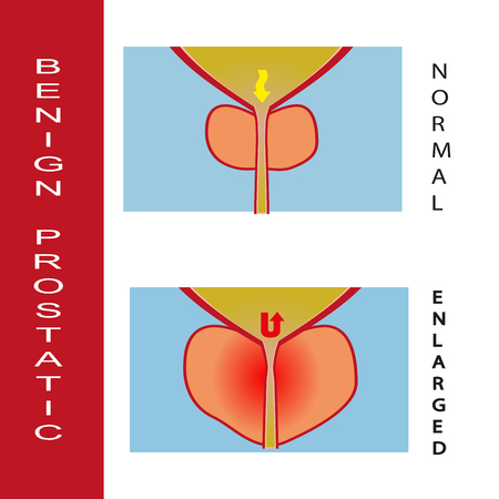 Benign prostatic hyperplasia, vector illustration (for basic medical education, for clinics & Schools)