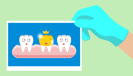 Tooth with golden dental crown icon in cartoon style on a white background Illustration