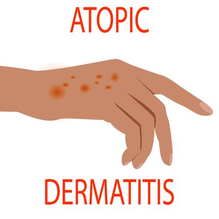 Atopic dermatitis health, medical, skin, pain, dermatitis, eczema. Vektorové ilustrace